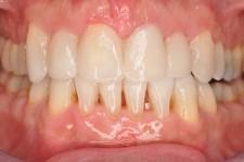 Behandeling | Vrijheid Tandartsen